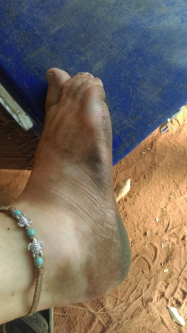 typical outback feet